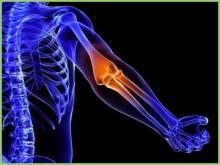 難波のテニス肘治療