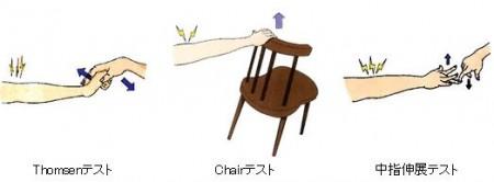 テニス肘の検査方法