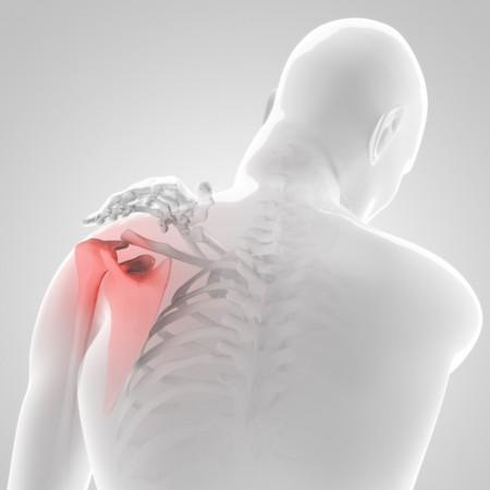 四十肩・五十肩の夜間痛